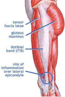 Relief for Iliotibial Band Syndrome